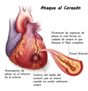 Ataque al Corazón